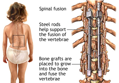 Scoliosis | Why I chose not to have a spinal fusion